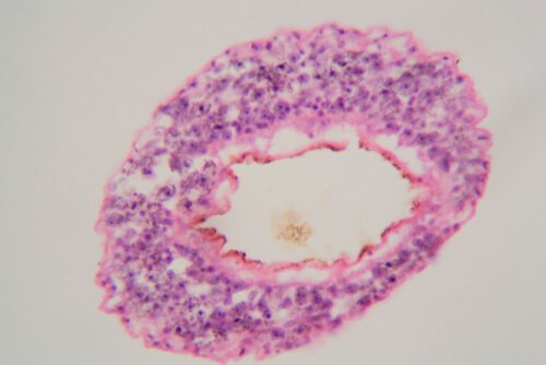 Batterio Schistosoma mansoni visto al microscopio