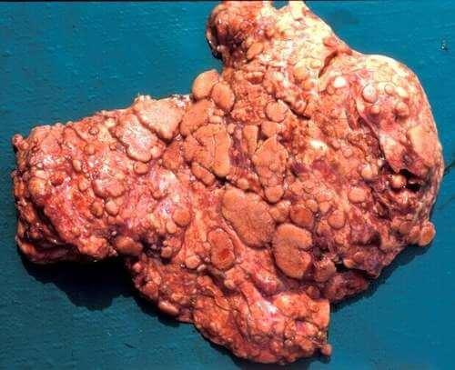 Tubercolosi bovina