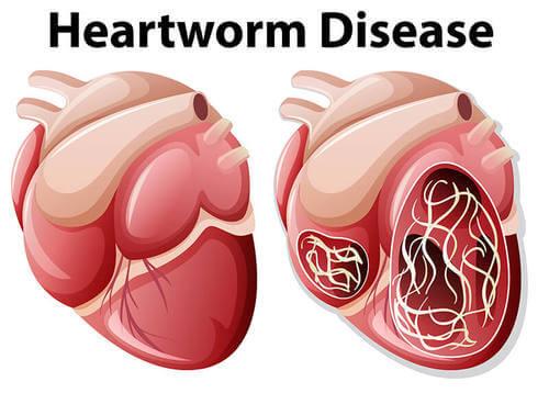 Cardiopatia da verme del cuore