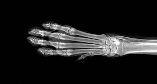 Radiografia alla zampa: cause del gonfiore agli arti dei cani
