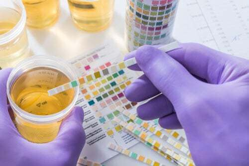 Test delle urine del cane