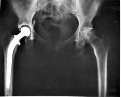 Radiografia per rilevare la displasia della anca nel cane.